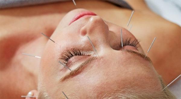 Kina i akunpunktura